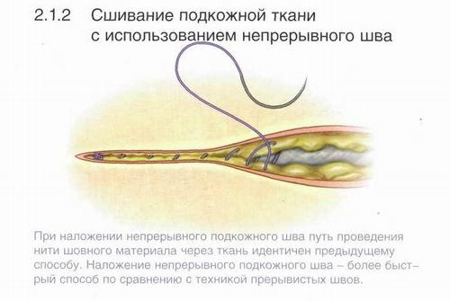 Методы наложения швов